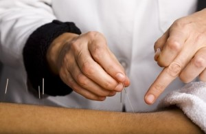 Acupuncture for Back Pain and Spinal Stenosis