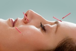 For about half of 18,000 study patients, chronic pain management with acupuncture offered some measure of relief.